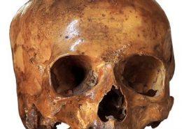 skull-300x200-354x300